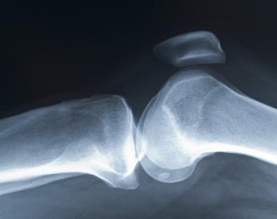 Ginocchio e dolore rotula