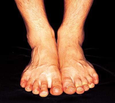 Sodio e potassio squilibrio conduce a caviglie gonfie?