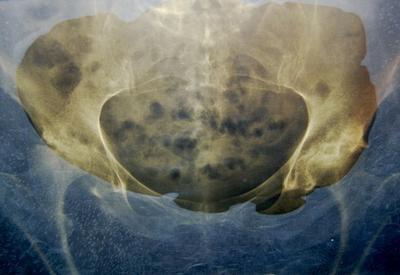 Problemi dell'anca del corpo umano