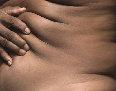 Esercizio può stringere la pelle mentre la perdita di peso?