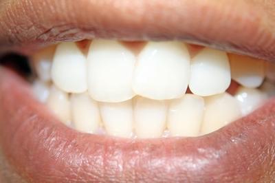 Alimenti che impediscono i denti gialli