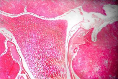 Creatina e cancro del rene