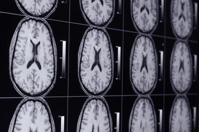 Quali sono i pericoli di MRI scansioni?