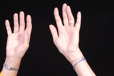 Home rimedi per le mani sudate