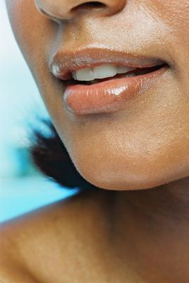 Capelli sul labbro superiore epilazione laser