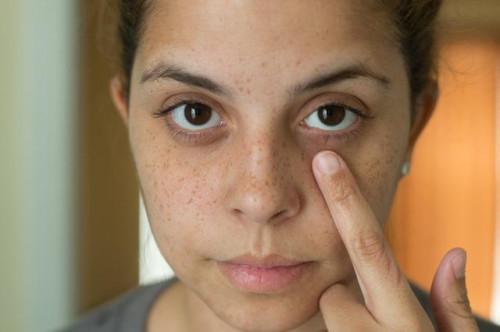 Home rimedi per la pelle scura & secca intorno agli occhi