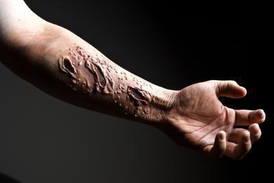 Oli di guarigione della cicatrice
