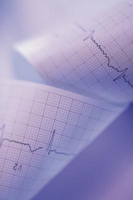Qual è il significato di alta frequenza cardiaca post-esercizio anche dopo un periodo di riposo?