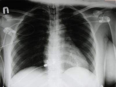 Segni e sintomi di polmonite di Varicella