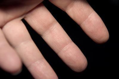 Home rimedi per rimuovere i calli sul dito