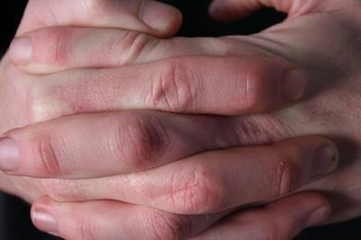 Segni di una lesione al legamento nel dito