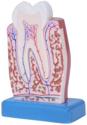 Olio di chiodi di garofano come un rimedio di alveolite post estrattiva