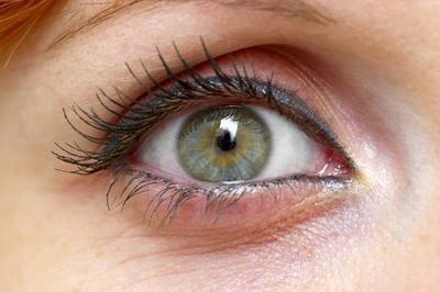 Cause di muco verde nell'occhio