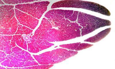 Pancreatite causata da carenza di vitamina B12