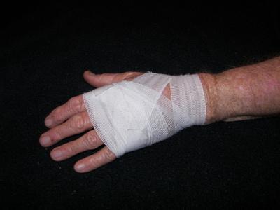 Come utilizzare vaselina alle cure per una cicatrice