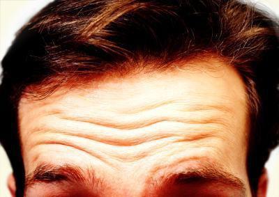 Come rimuovere le rughe sulla fronte
