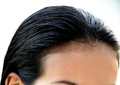 Come far ricrescere i capelli su una linea sottile retrocedere