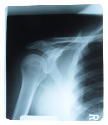 Trattamento di terapia fisica & restrizioni per l'articolazione della spalla totale
