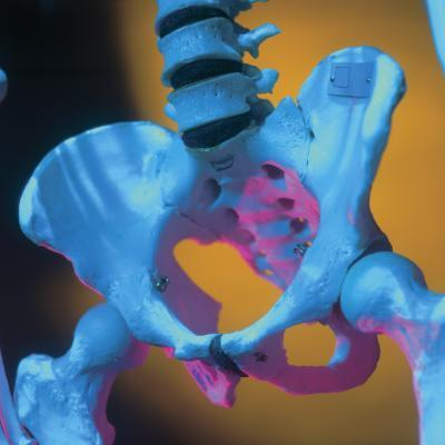 Esercizi di sicuro con frattura di sforzo sacrale