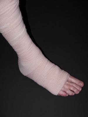 Cause di dolore di osso esterno della caviglia