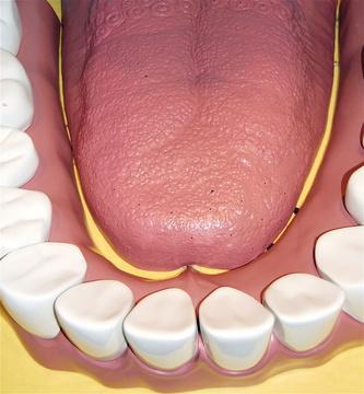 Quali sono i diversi tipi di cancro orale?