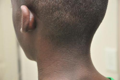 Cura della pelle suggerimenti per gli uomini neri