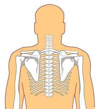 Quattro livelli di fusione spinale
