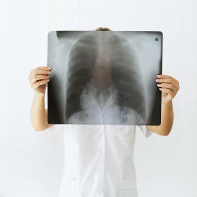 Come viene fatta una diagnosi di cancro del polmone?