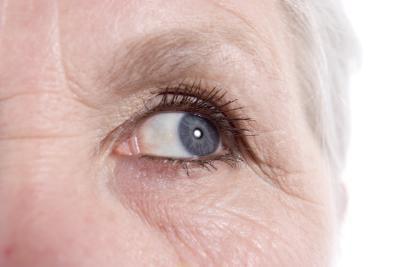 Come ridurre le rughe tra gli occhi