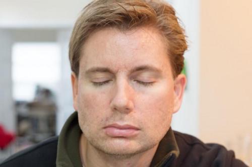 Esercizi facciali per prevenire le rughe