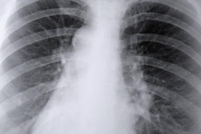 Complicazioni dopo una biopsia dei polmoni