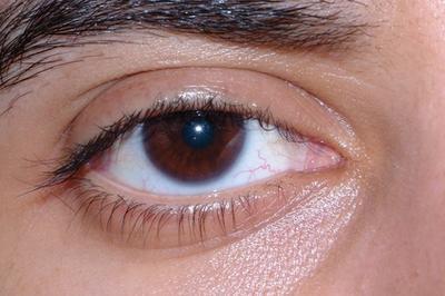 Malattie dell'occhio mortale