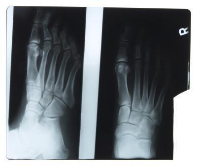 Dolore alla pianta del piede durante l'esercizio