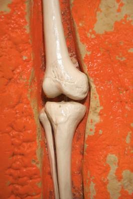 Riabilitazione da Plateau tibiale del ginocchio chirurgia