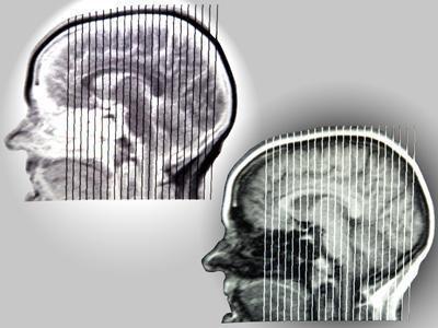 Cause e gli effetti della malattia di Parkinson