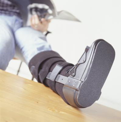 Come perdere peso con una gamba rotta