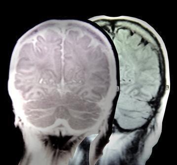 Un elenco delle malattie mortali del cervello umano