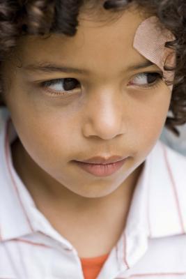 Piaghe facciale in bambini
