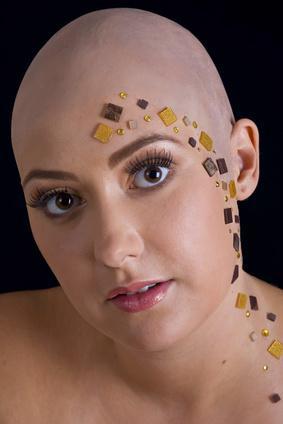 L'effetto di Rogaine sulle donne con Alopecia
