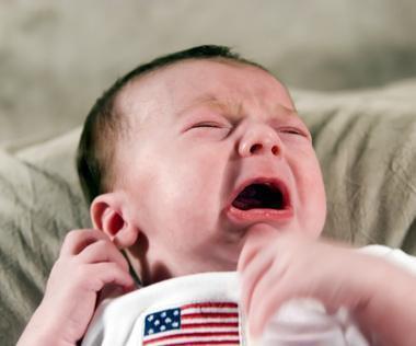 Come curare un'ustione minore su un bambino
