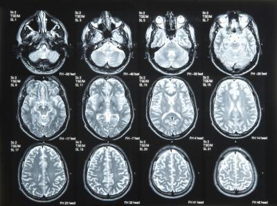 Cause di cisti cerebrali