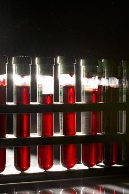 Livelli normali per gli enzimi del fegato