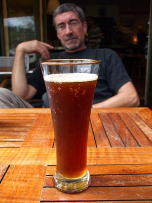Sintomi di neuropatia alcolica