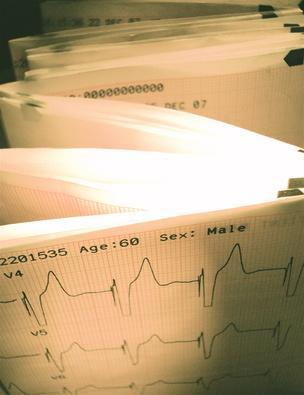Il tempo di frequenza cardiaca di recupero dopo l'esercizio Cardio