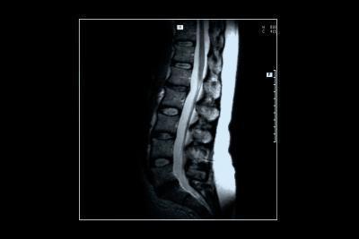 Debilitante dolore alla schiena