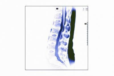 Sintomi di Herpes della spina dorsale