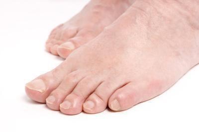 Neuropatia di piede, fegato grasso & sovraccarico di ferro