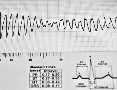 Un bloccaggio dell'arteria coronaria & Stent
