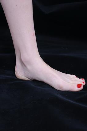 Cause di formicolio lungo la gamba sinistra