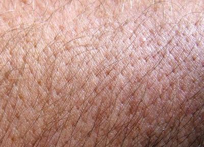 Che cosa provoca perdita di capelli del corpo?